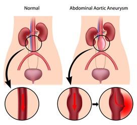Aneurisma aortico addominale