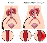 Aneurisma aortico addominale | Pazienti.it