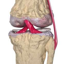 Osteoartrosi (osteoartrite)