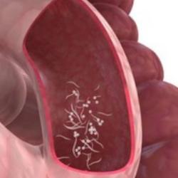 ossiuri e rimedi naturali