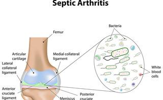 Artrite settica: cause, sintomi e cura