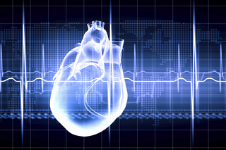 Contrazioni ventricolari premature