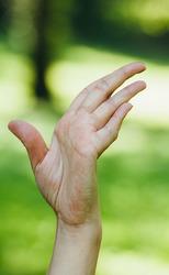 Sindrome da ipermobilita articolare