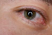 Congiuntivite_allergica | Pazienti.it