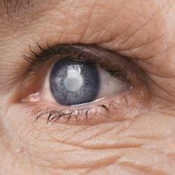 Glaucoma Si Sviluppa nell'Occhio di un Anziano a Rischio