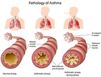 Asma occupazionale