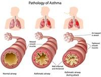 Asma occupazionale | Pazienti.it