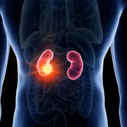 Infezione del rene