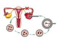 Inseminazione artificiale e procreazione medicalmente assistita | Pazienti.it