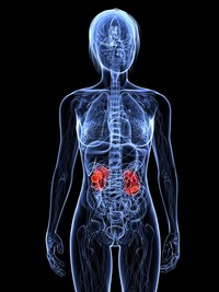 Tumore del rene