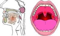 Asportazione delle adenoidi (adenoidectomia)