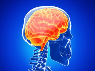 Ascesso cerebrale