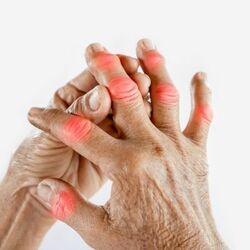 Persona Anziana si Tocca le Articolazioni delle Mani Colpite dalla Gotta