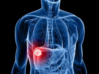 Tumore al fegato