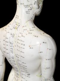 Agopuntura | Pazienti.it