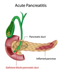 Pancreatitis | Pazienti.it