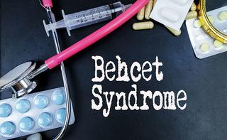 Malattia di Behcet