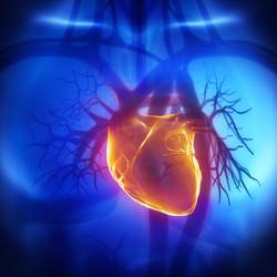Attacco cardiaco