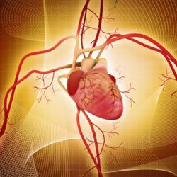 Ablazione cardiaca transcatetere