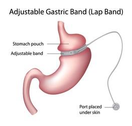 Bendaggio gastrico