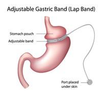 Bendaggio gastrico | Pazienti.it