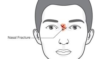 Frattura setto nasale