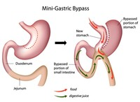 Bypass_gastrico | Pazienti.it