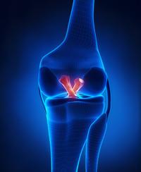 Ricostruzione legamento crociato anteriore | Pazienti.it