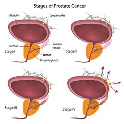 Procedure di monitoraggio del tumore alla prostata