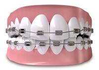 Apparecchio ortodontico | Pazienti.it
