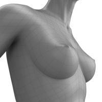 Mastoplastica additiva | Pazienti.it