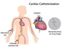 Cateterismo cardiaco | Pazienti.it
