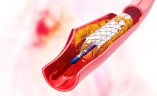 Angioplastica carotidea