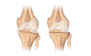 Osteotomia del ginocchio
