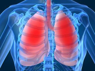 Trapianto di polmone