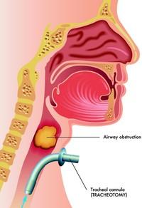 Tracheotomia