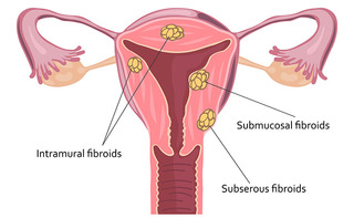 Embolizzazione dell'arteria uterina