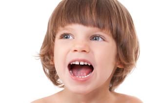 Sindrome della bocca bruciante
