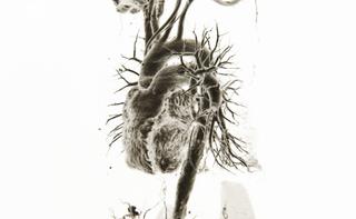 TC coronarografia