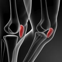 Lesione del legamento crociato anteriore | Pazienti.it