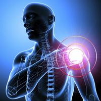 Lussazione della spalla | Pazienti.it