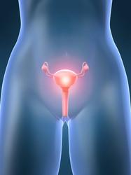 Cistoadenocarcinoma (neoplasie ovariche)