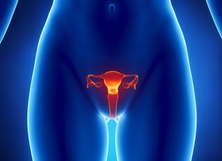 Ovarite