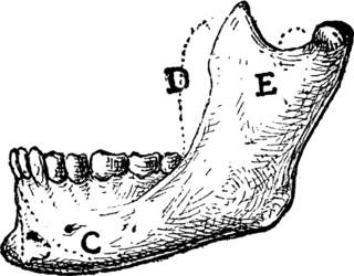 Agenesia della mandibola