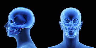 Acrocefalosindattilia