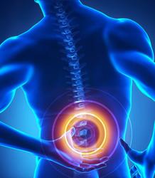 Contusione della colonna vertebrale