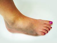 Contusione muscolare | Pazienti.it