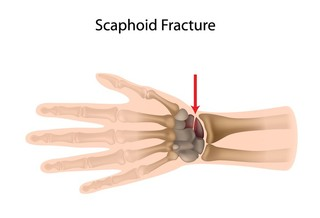 Frattura della mano
