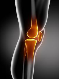 Frattura del ginocchio
