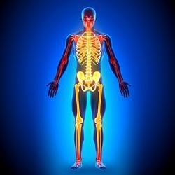 Osteopetrosi